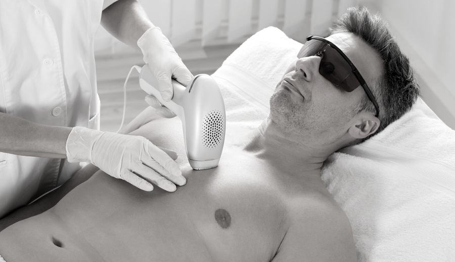 Men's Guide to Laser Hair Removal