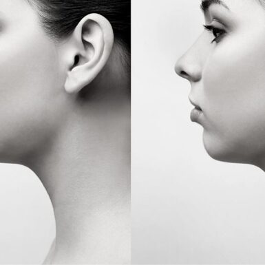 5 Important Tips to Keep In Mind After Rhinoplasty