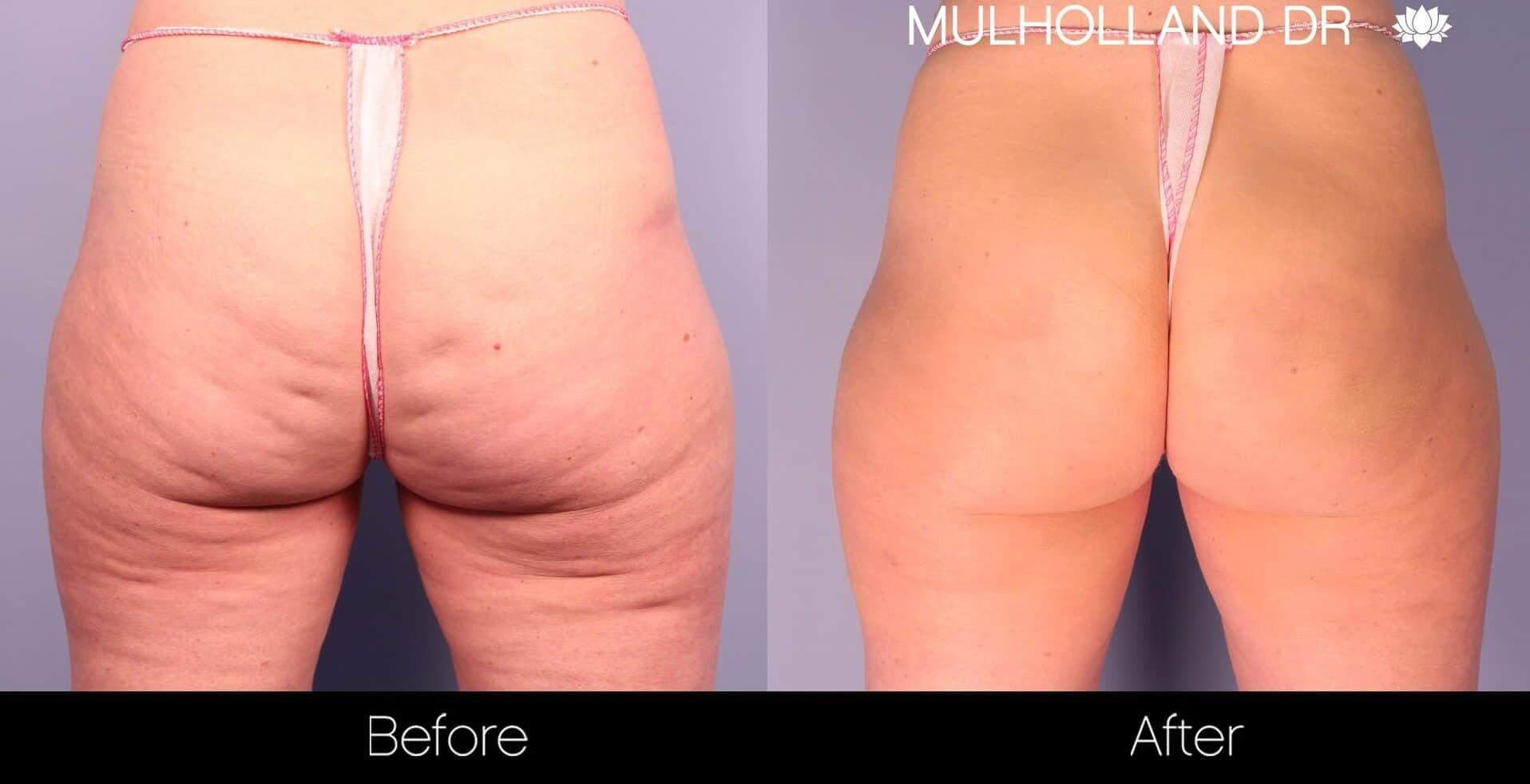 Cellfina Cellulite Treatment - Before and After Gallery – Photo 1