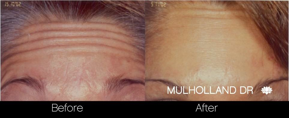 Botox Before and After Gallery - Photo 13