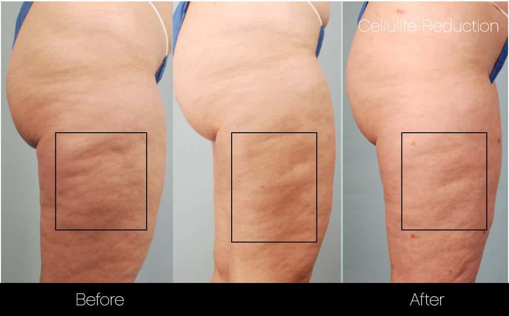 Cellulite Reduction Before and After Gallery – Photo 40