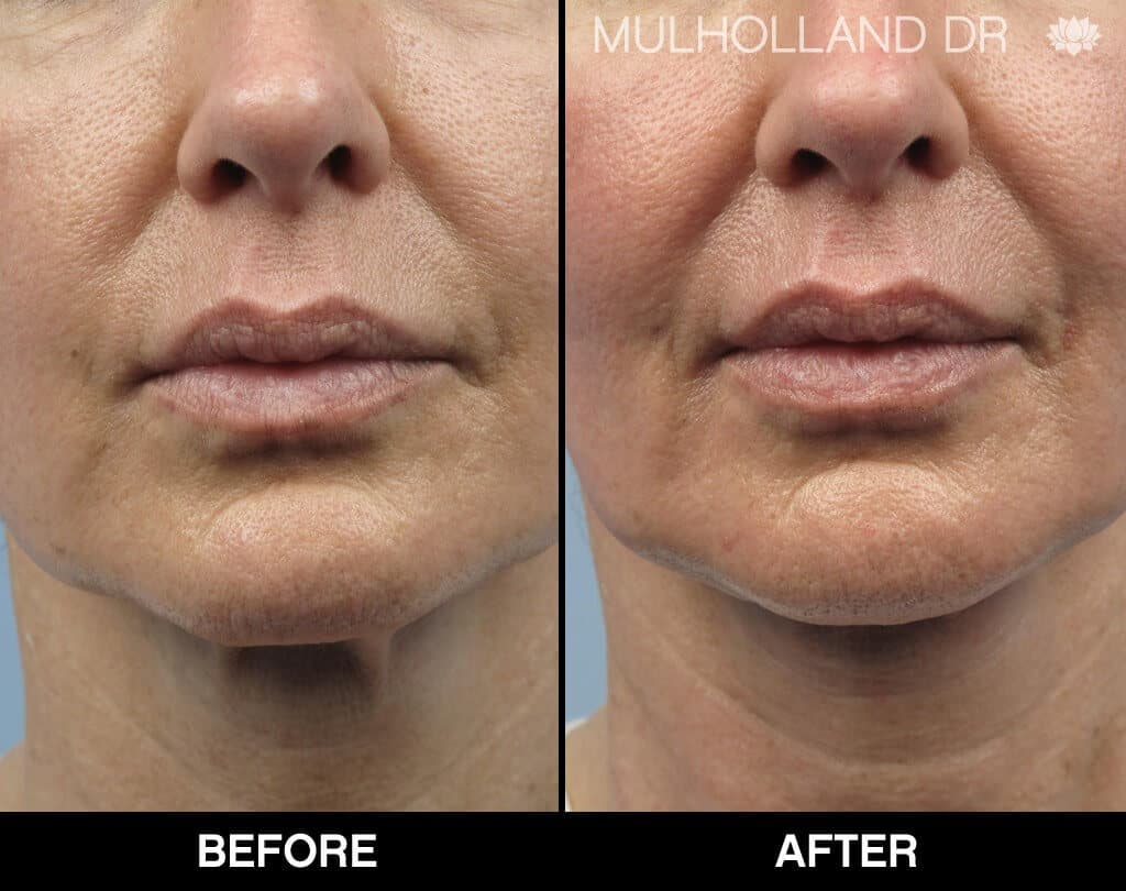 Dermal Fillers Before and After Gallery – Photo 135