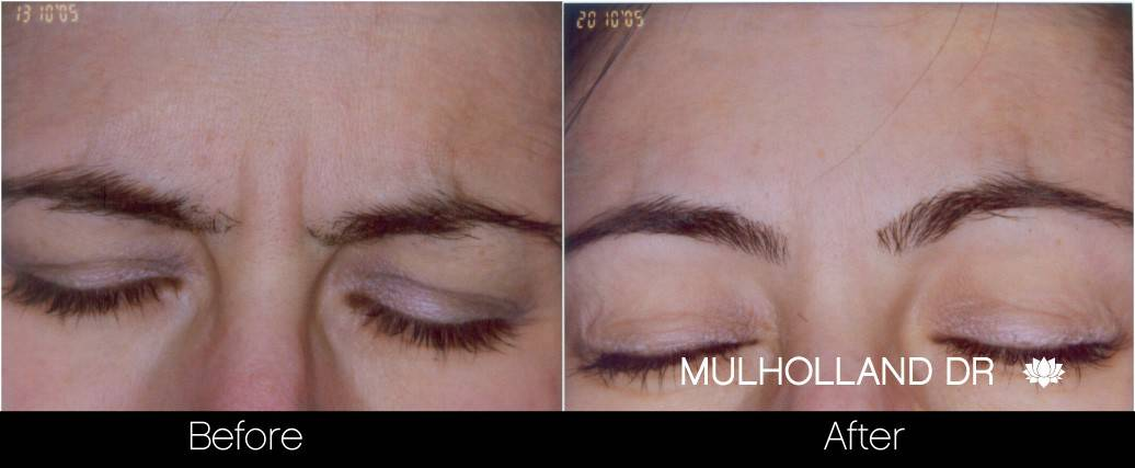 Botox Before and After Gallery - Photo 14