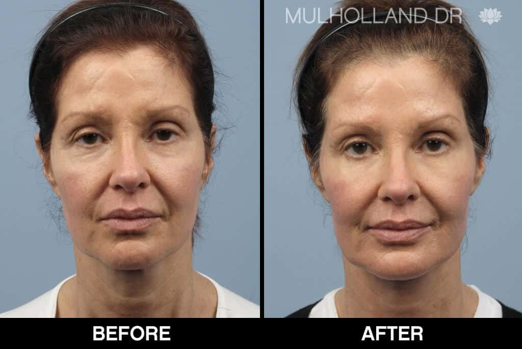 Dermal Fillers Before and After Gallery – Photo 134
