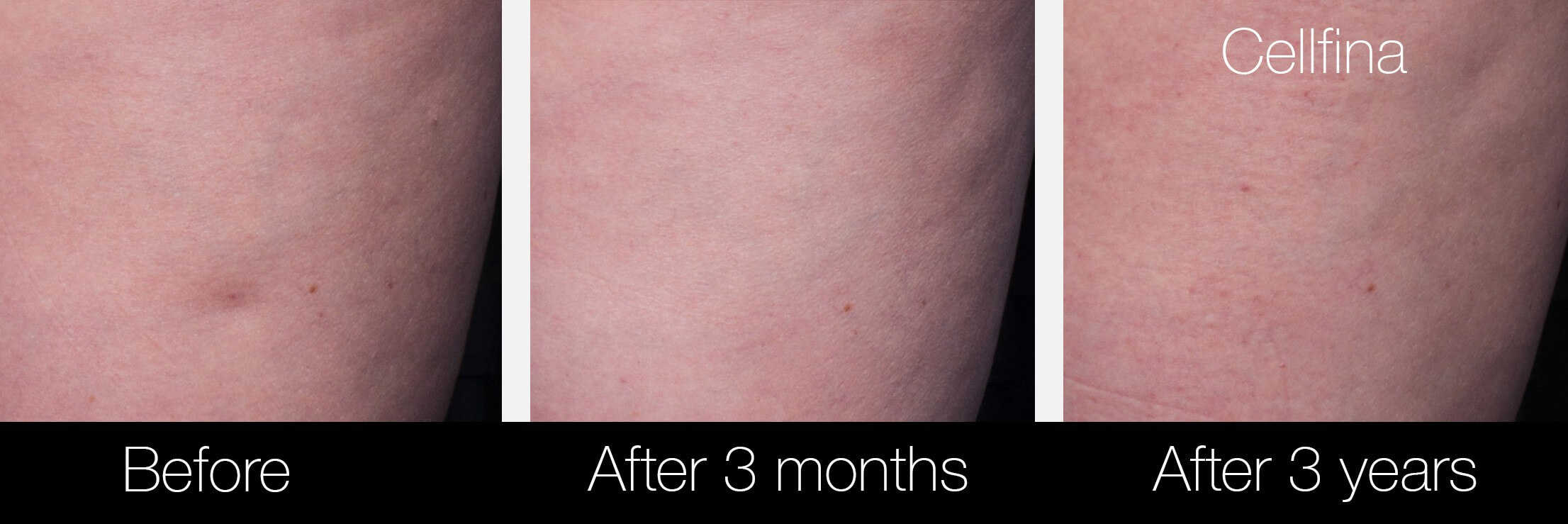 Cellfina Cellulite Treatment - Before and After Gallery – Photo 11