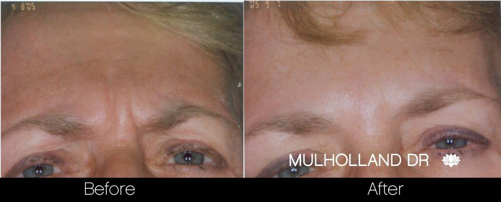 Botox Before and After Gallery - Photo 12