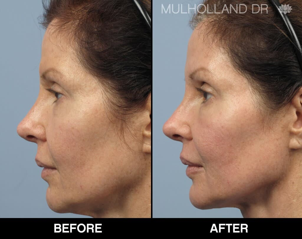 Dermal Fillers Before and After Gallery – Photo 132