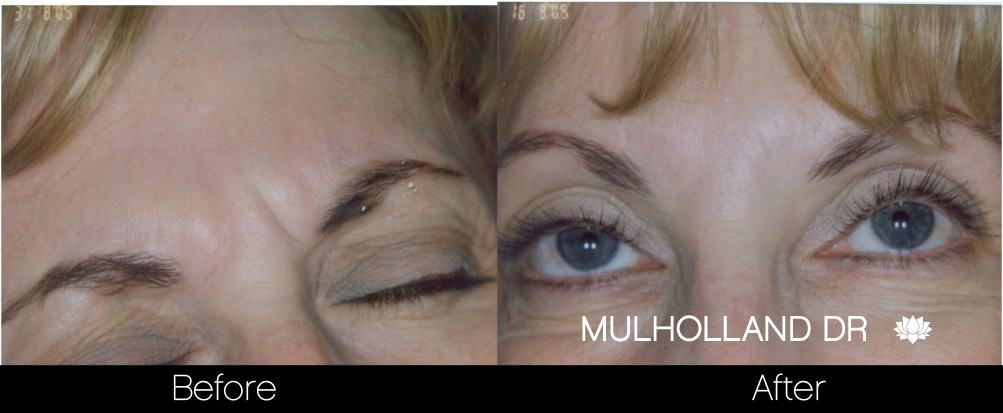 Botox Before and After Gallery - Photo 18