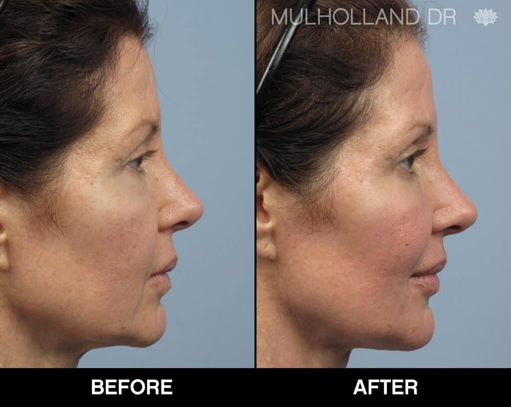 Dermal Fillers Before and After Gallery – Photo 130