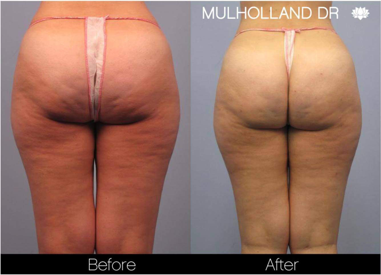 Cellulite Reduction Before and After Gallery – Photo 18