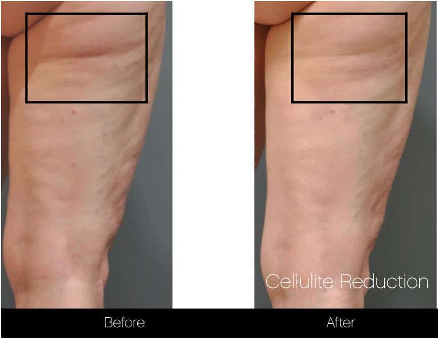 Cellulite Reduction Before and After Gallery – Photo 17