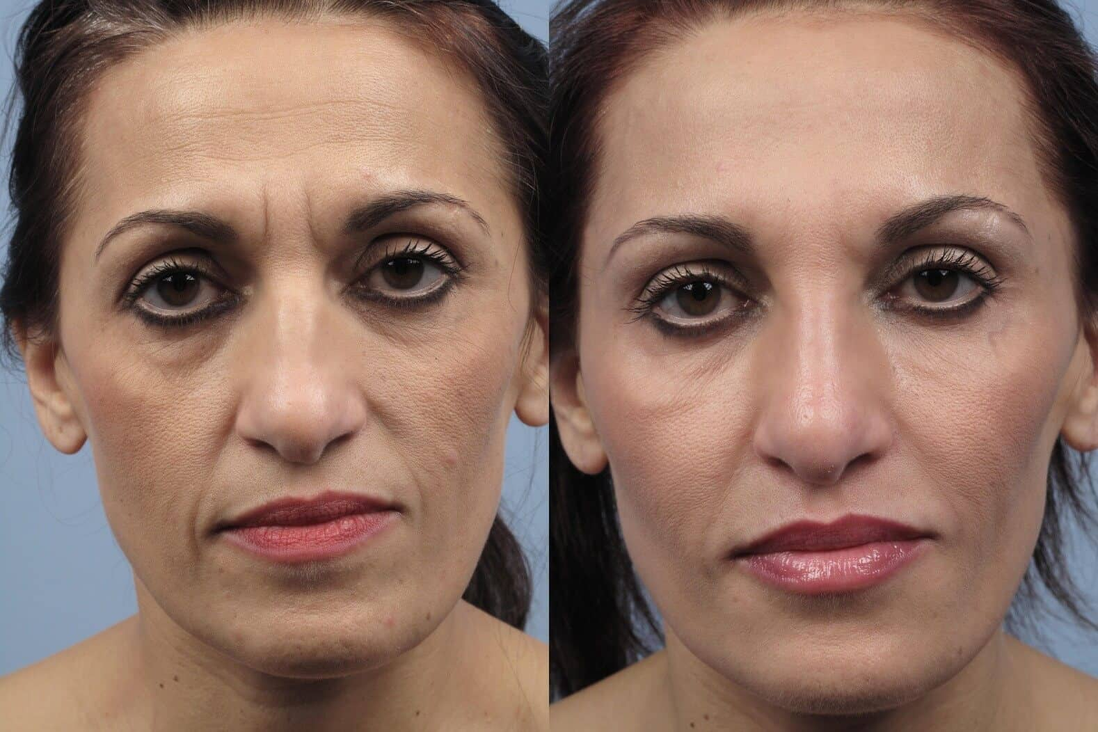 Fractional CO2 Laser Before and After Gallery – Photo 54