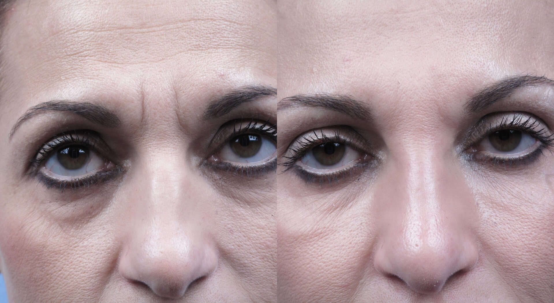 Fractional CO2 Laser Before and After Gallery – Photo 53