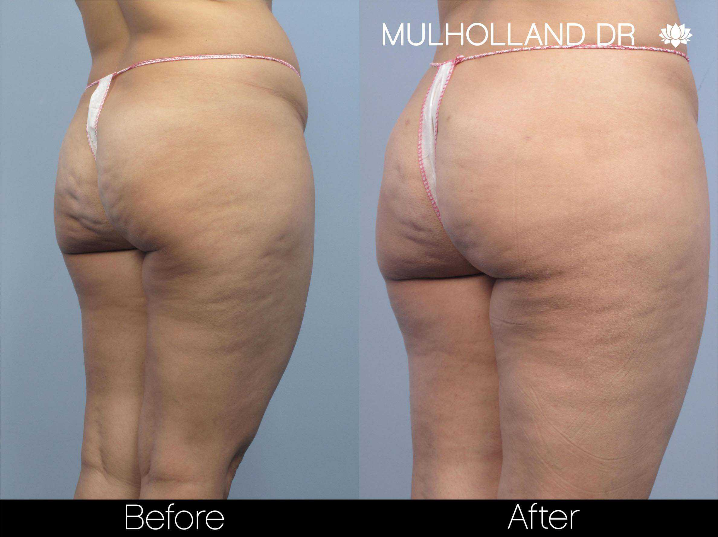 Cellulite Reduction Before and After Gallery – Photo 48