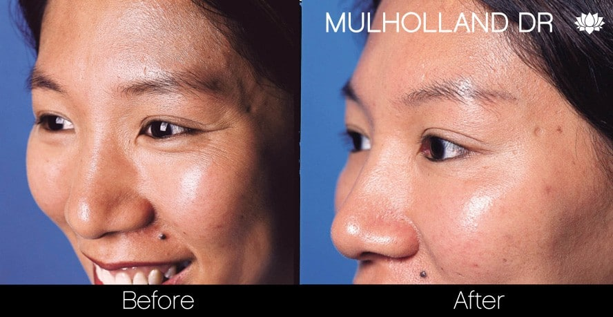Botox Before and After Gallery - Photo 17