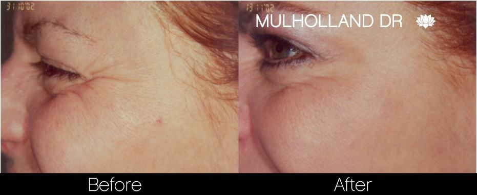 Botox Before and After Gallery - Photo 22