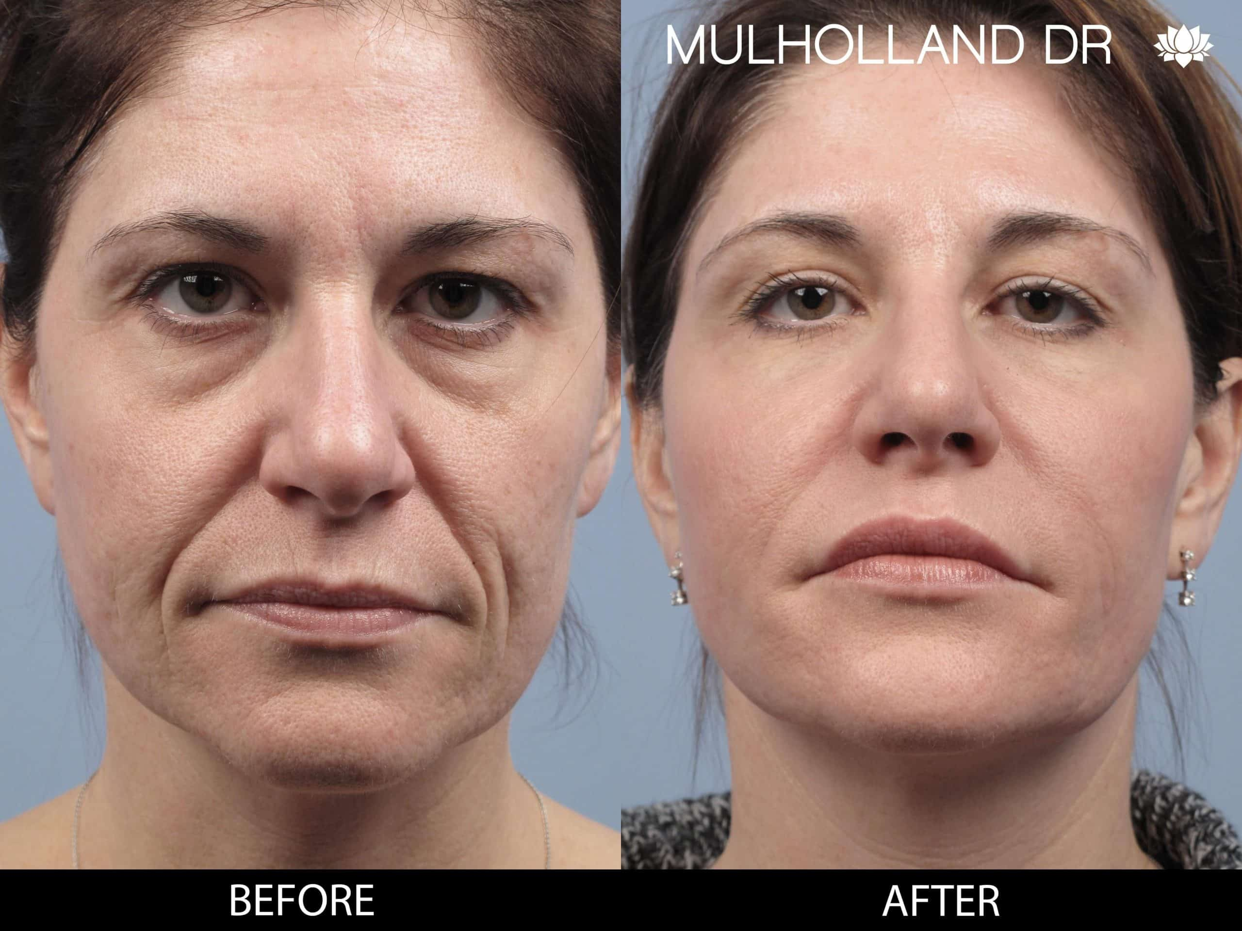Dermal Fillers Before and After Gallery – Photo 124