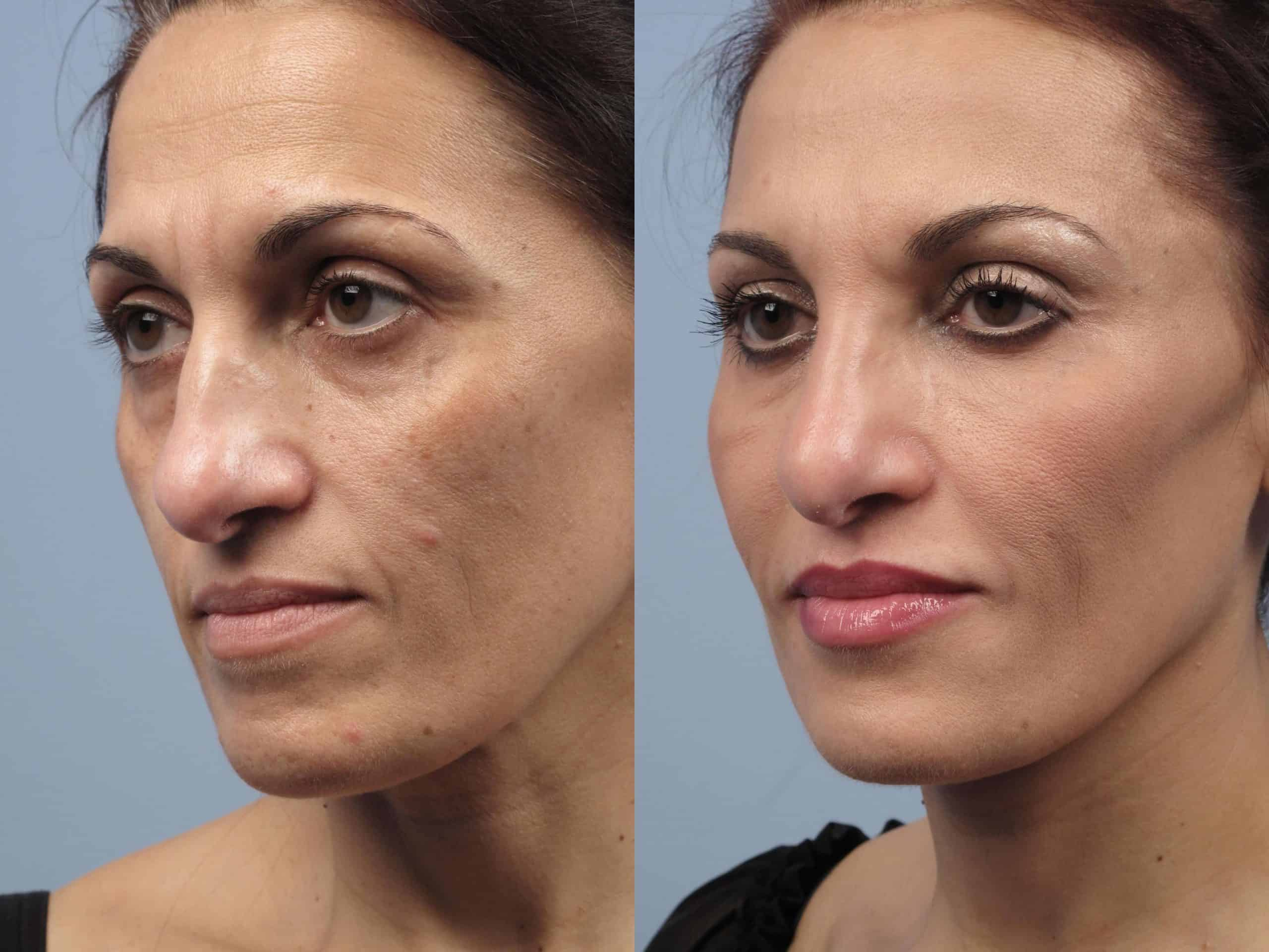 Fractional CO2 Laser Before and After Gallery – Photo 51