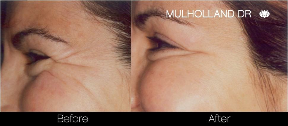 Botox Before and After Gallery - Photo 23