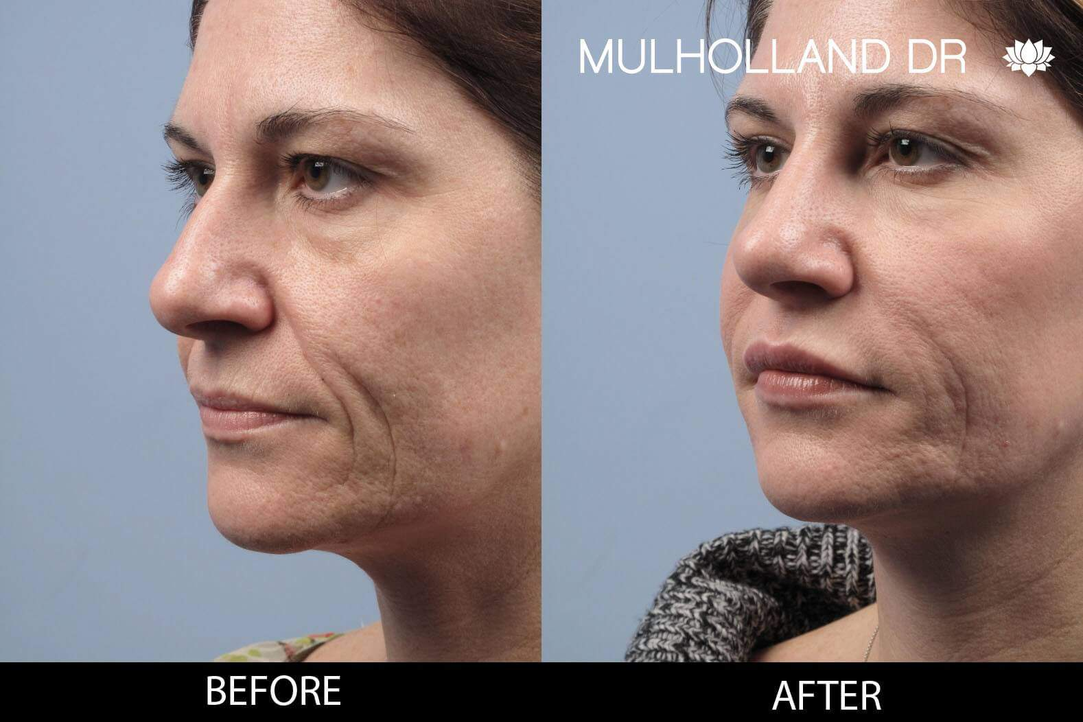 Dermal Fillers Before and After Gallery – Photo 123