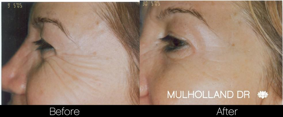Botox Before and After Gallery - Photo 24