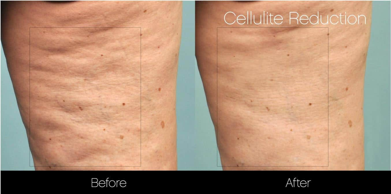 Cellulite Reduction Before and After Gallery – Photo 12