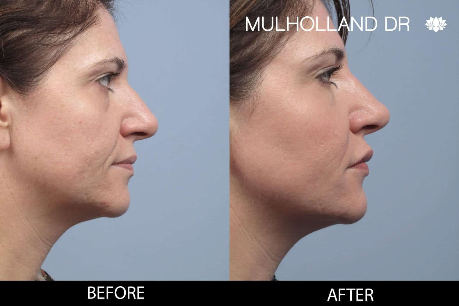 Dermal Fillers Before and After Gallery – Photo 121