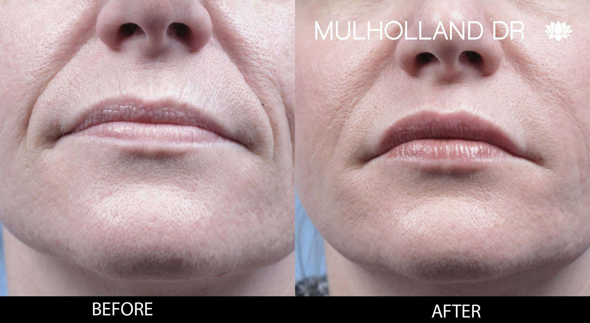 Dermal Fillers Before and After Gallery – Photo 120