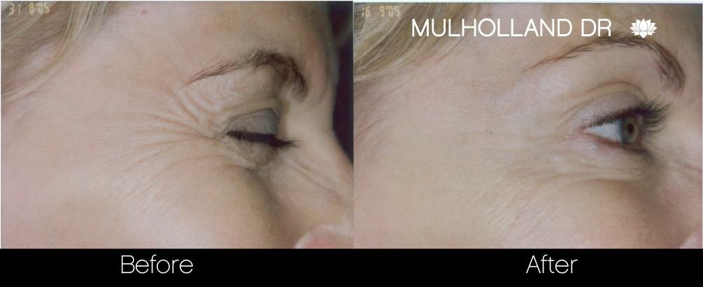 Botox Before and After Gallery - Photo 19