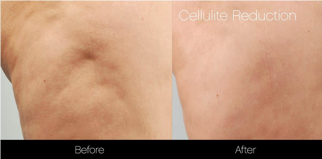 Cellulite Reduction Before and After Gallery – Photo 9