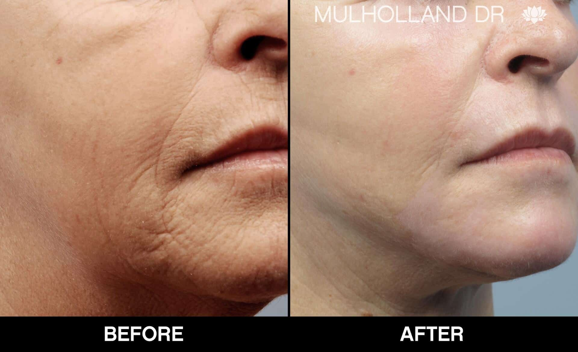 Fractional CO2 Laser Before and After Gallery – Photo 46