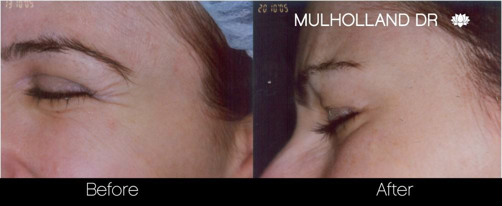Botox Before and After Gallery - Photo 27