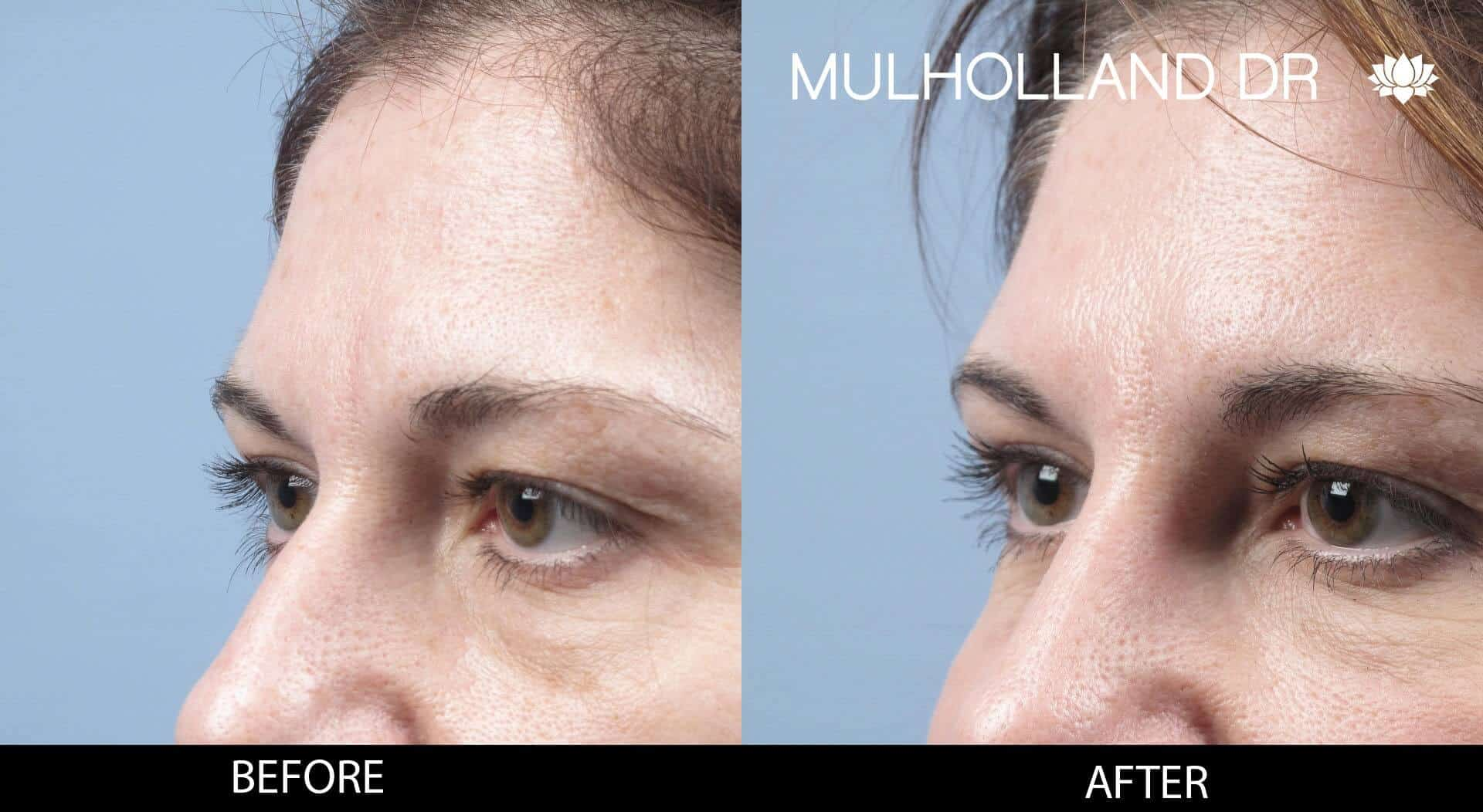 Dermal Fillers Before and After Gallery – Photo 119