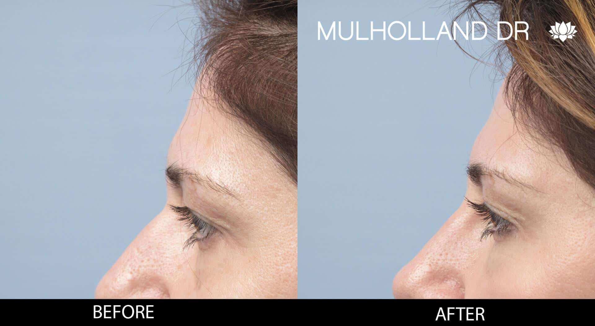 Dermal Fillers Before and After Gallery – Photo 118