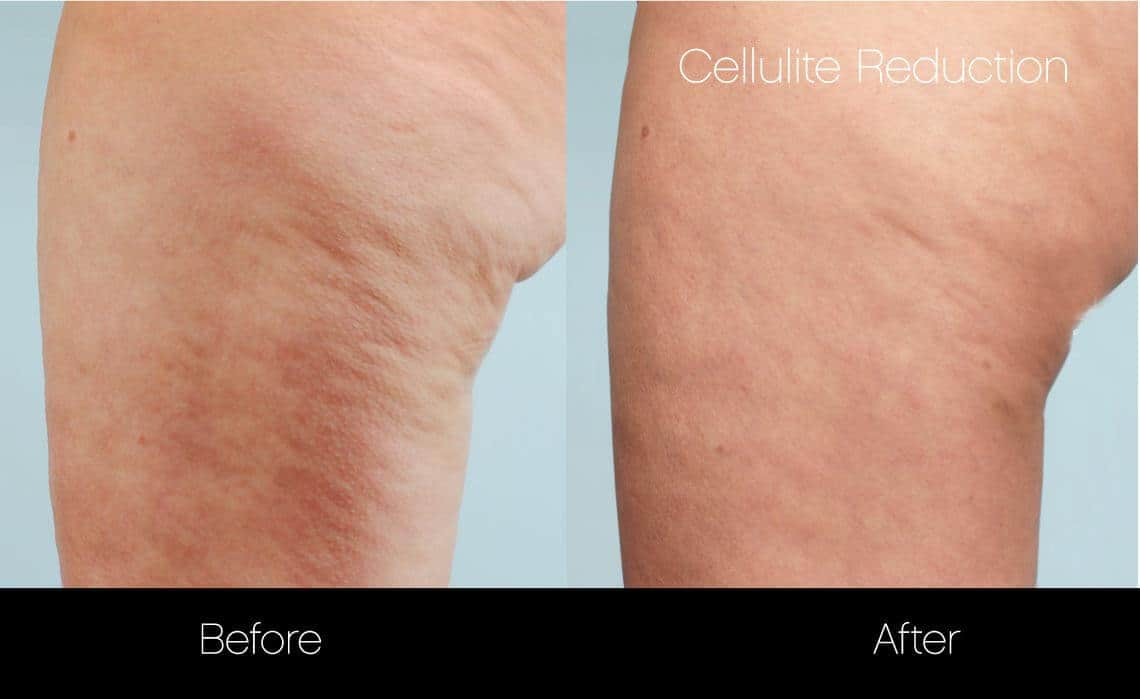 Cellulite Reduction Before and After Gallery – Photo 7