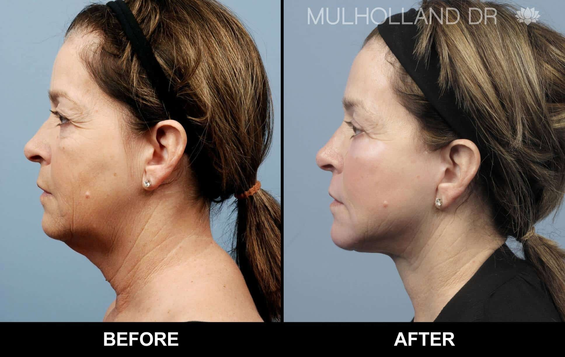Fractional CO2 Laser Before and After Gallery – Photo 45