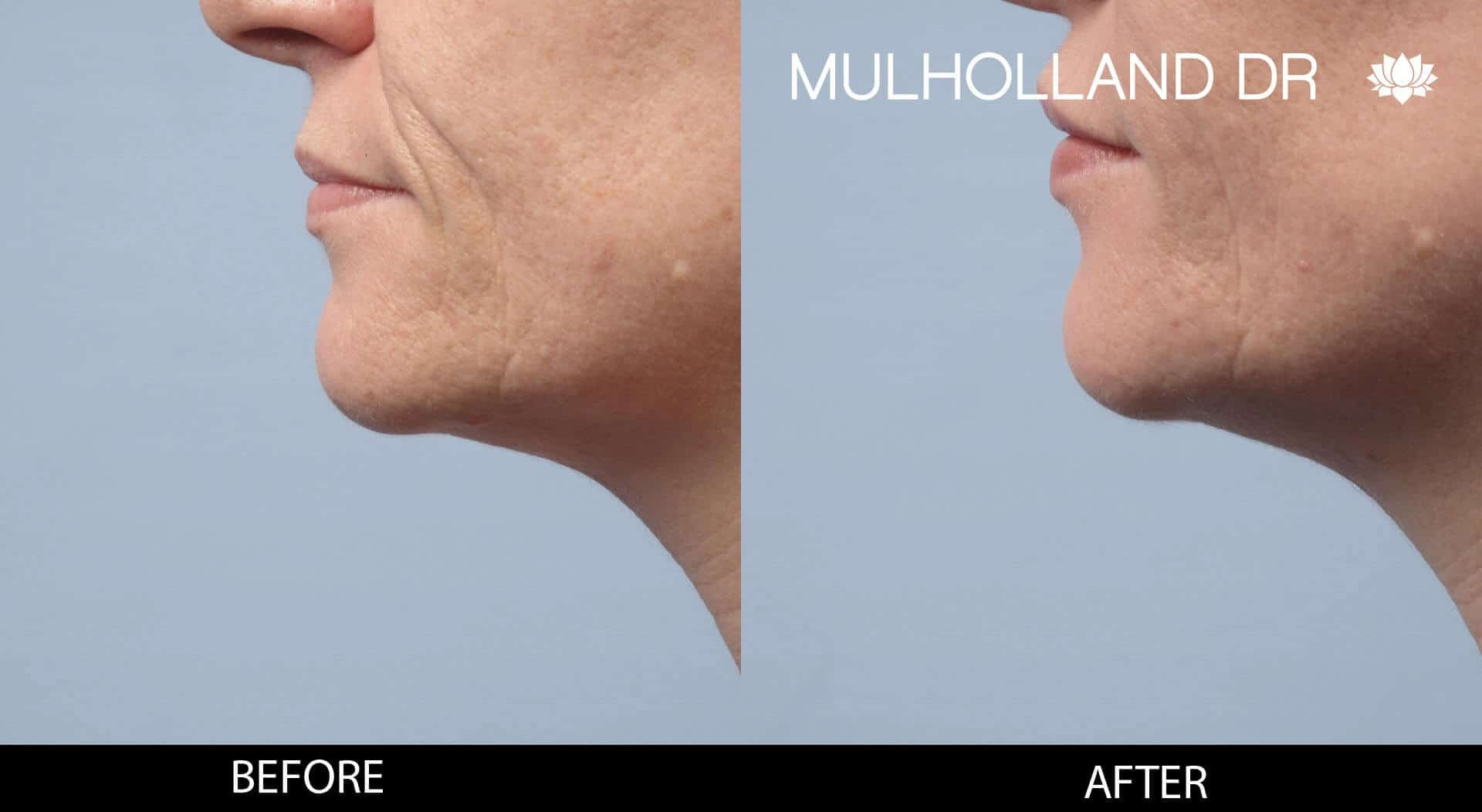 Dermal Fillers Before and After Gallery – Photo 117