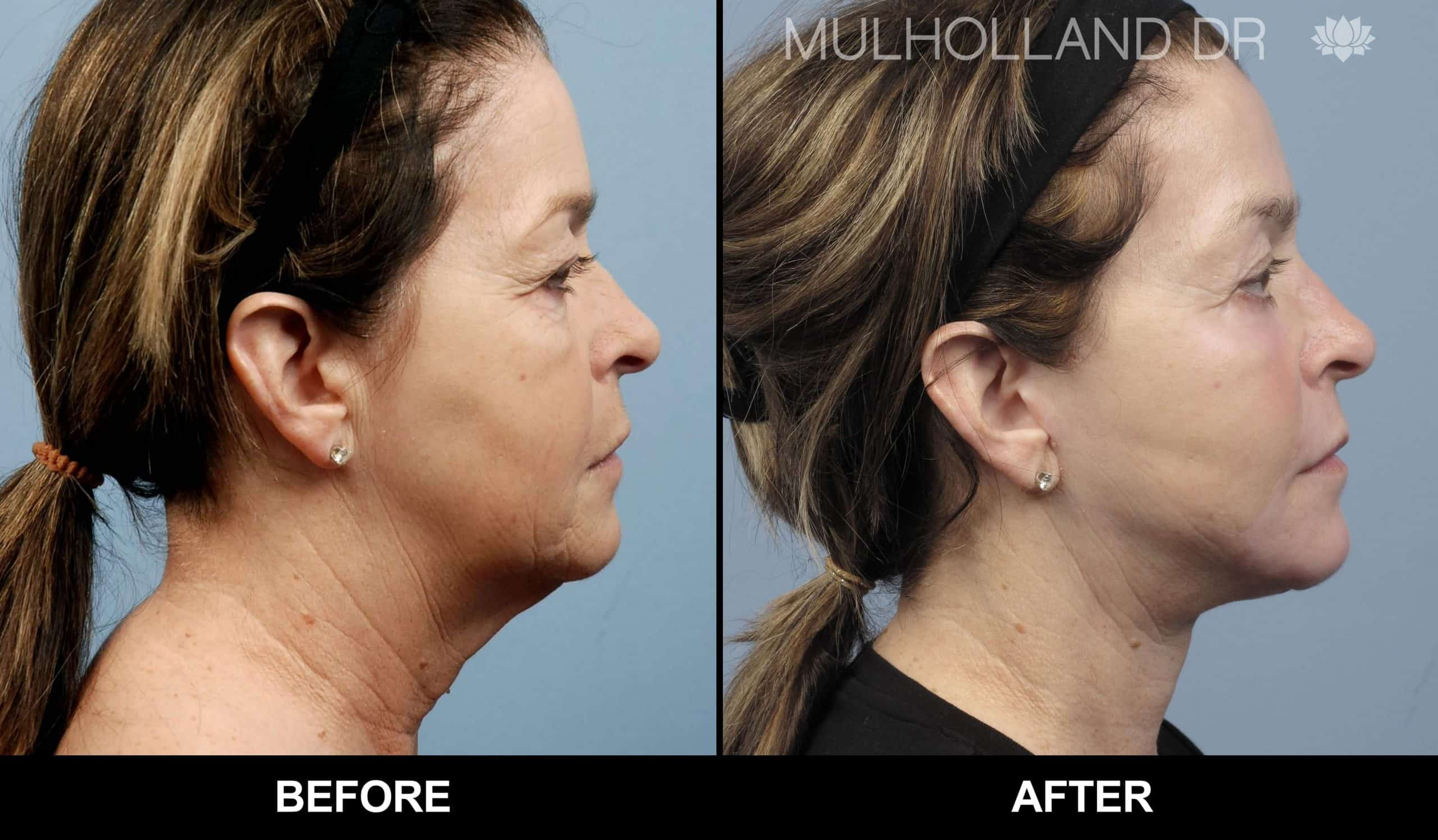 Fractional CO2 Laser Before and After Gallery – Photo 44