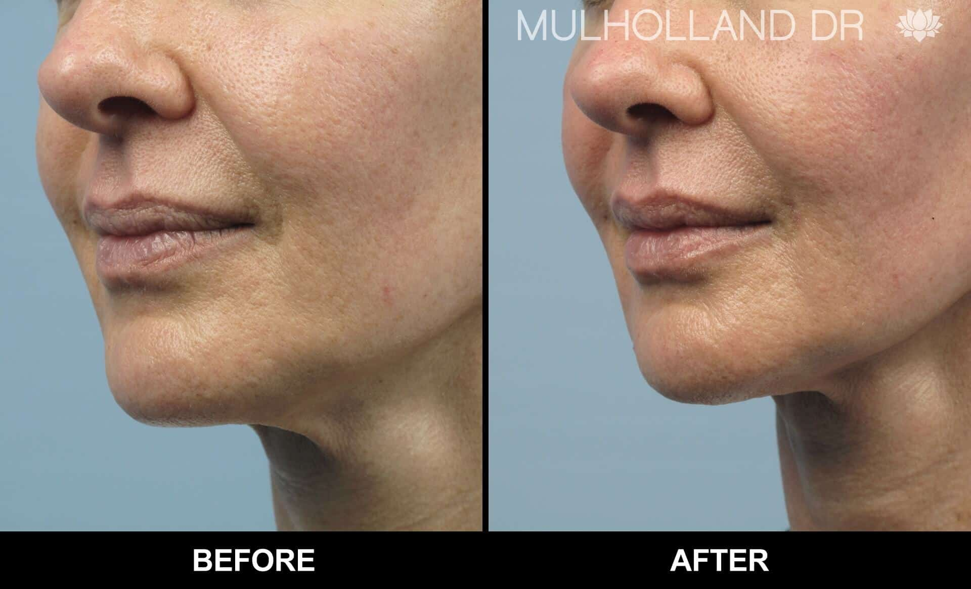 Dermal Fillers Before and After Gallery – Photo 141