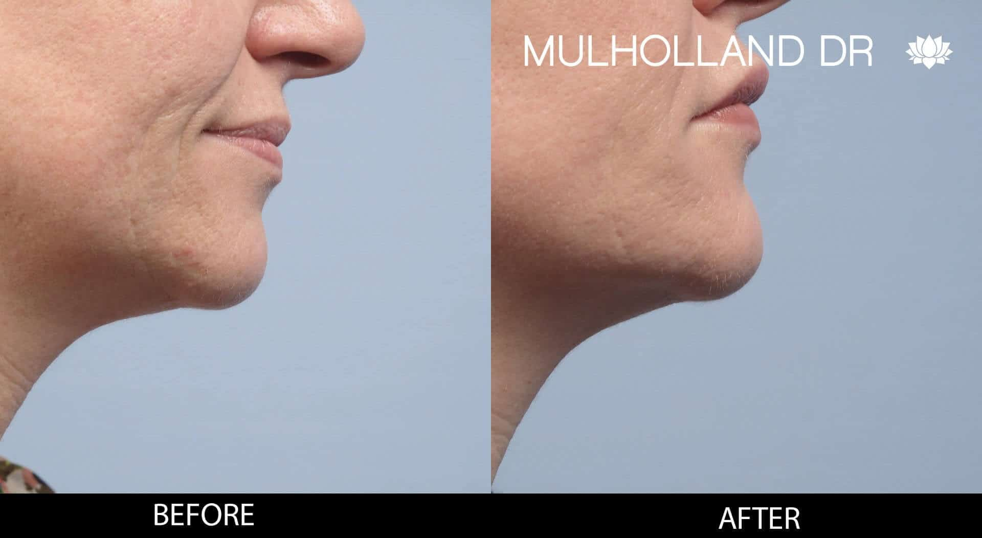 Dermal Fillers Before and After Gallery – Photo 116