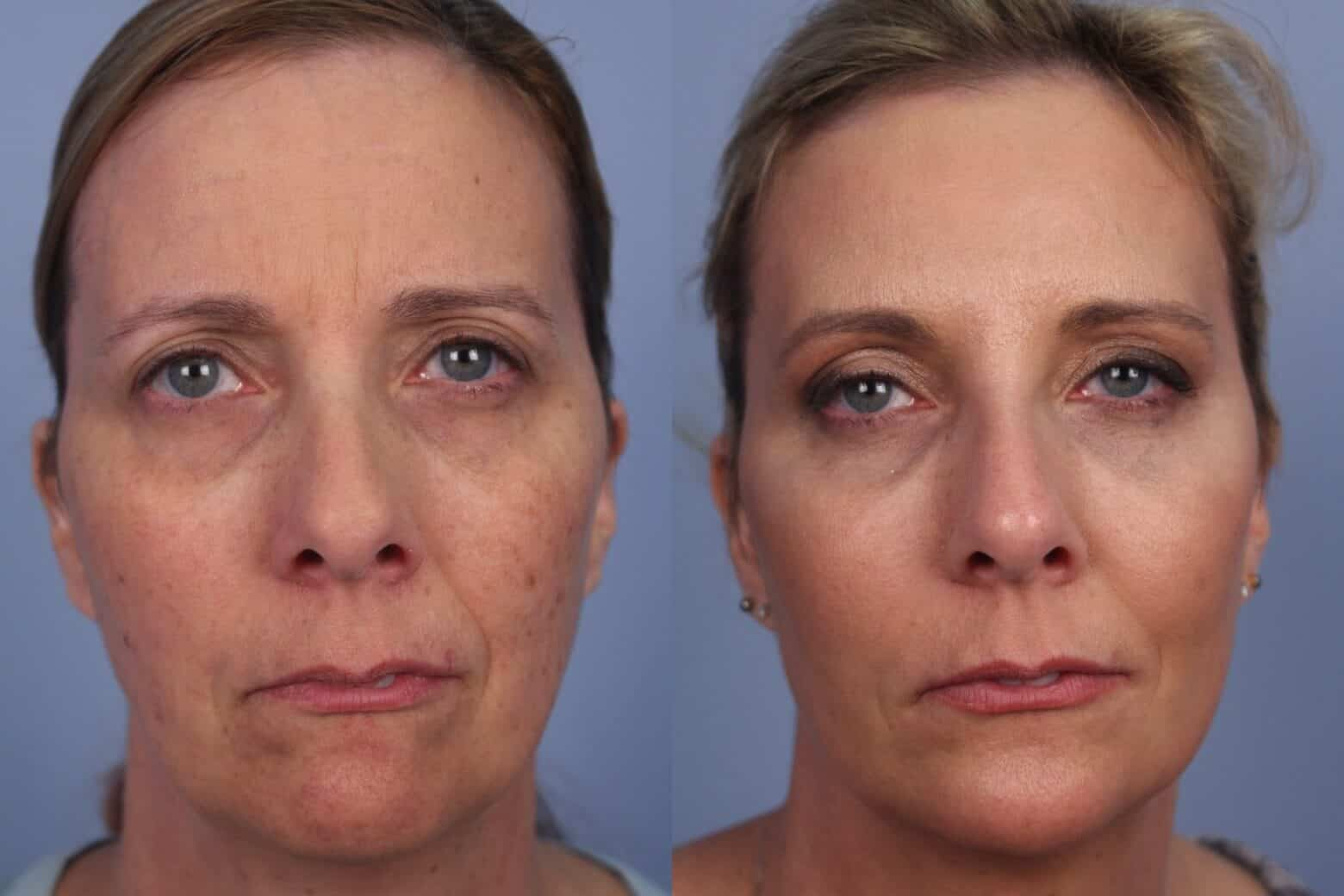 Fractional CO2 Laser Before and After Gallery – Photo 41