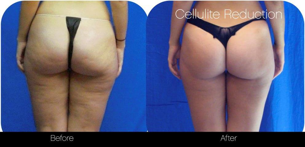 Cellulite Reduction Before and After Gallery – Photo 2