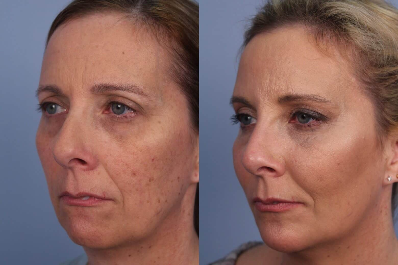 Fractional CO2 Laser Before and After Gallery – Photo 37