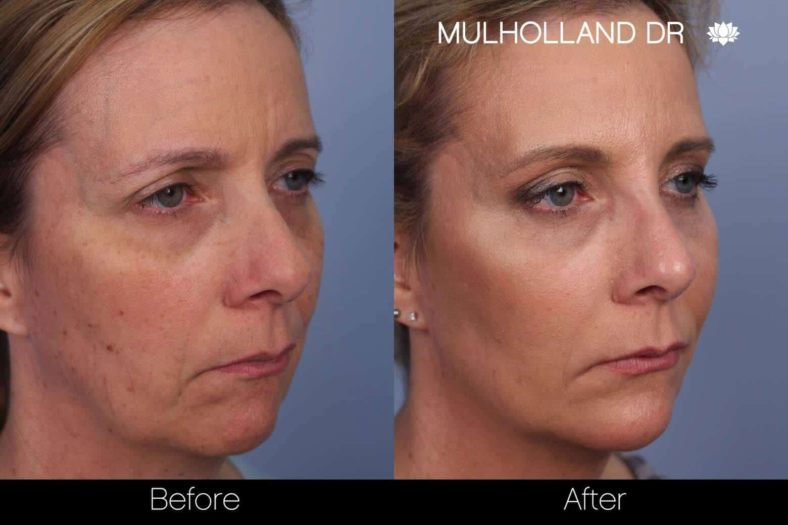 Fractional CO2 Laser Before and After Gallery – Photo 36