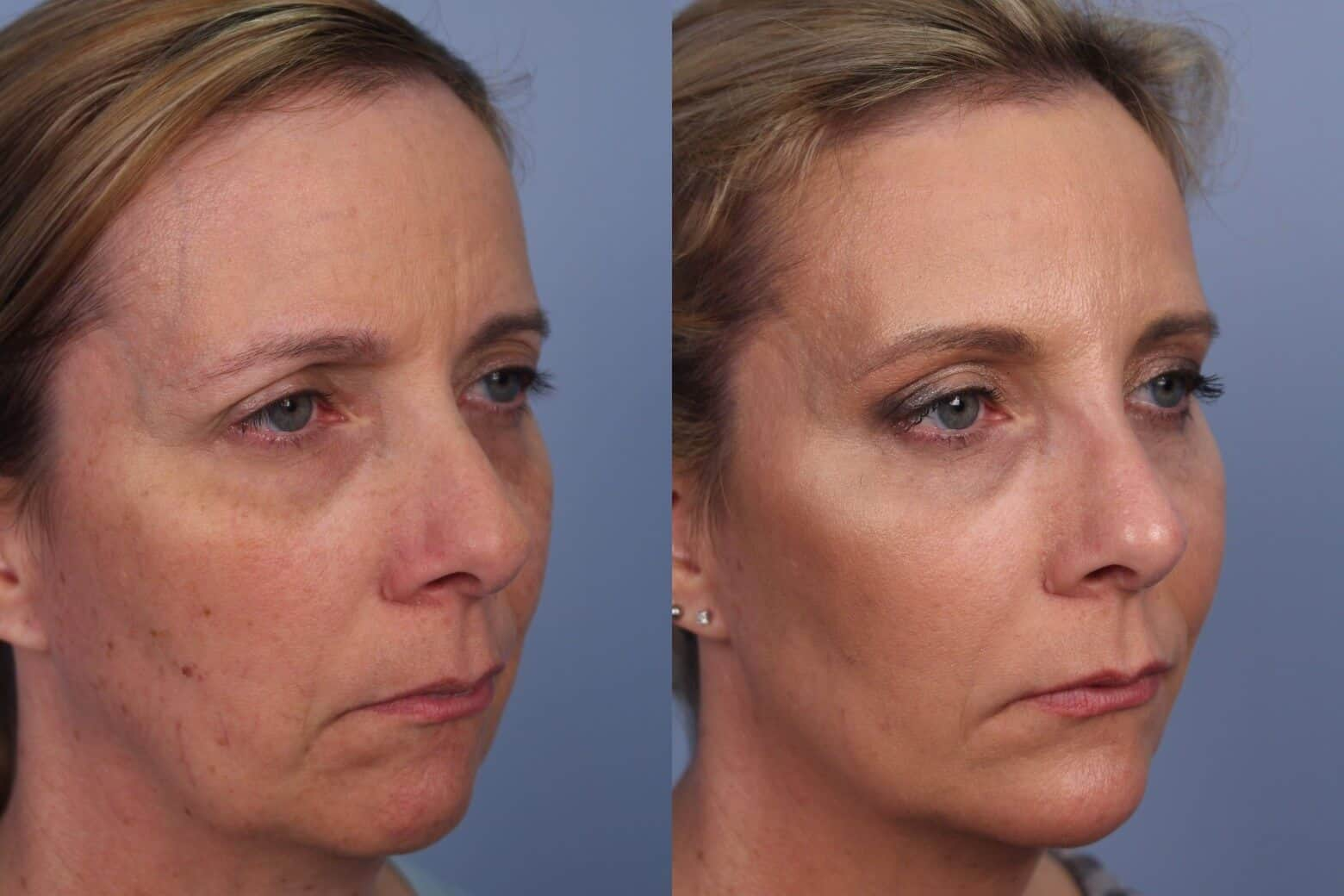 Fractional CO2 Laser Before and After Gallery – Photo 35