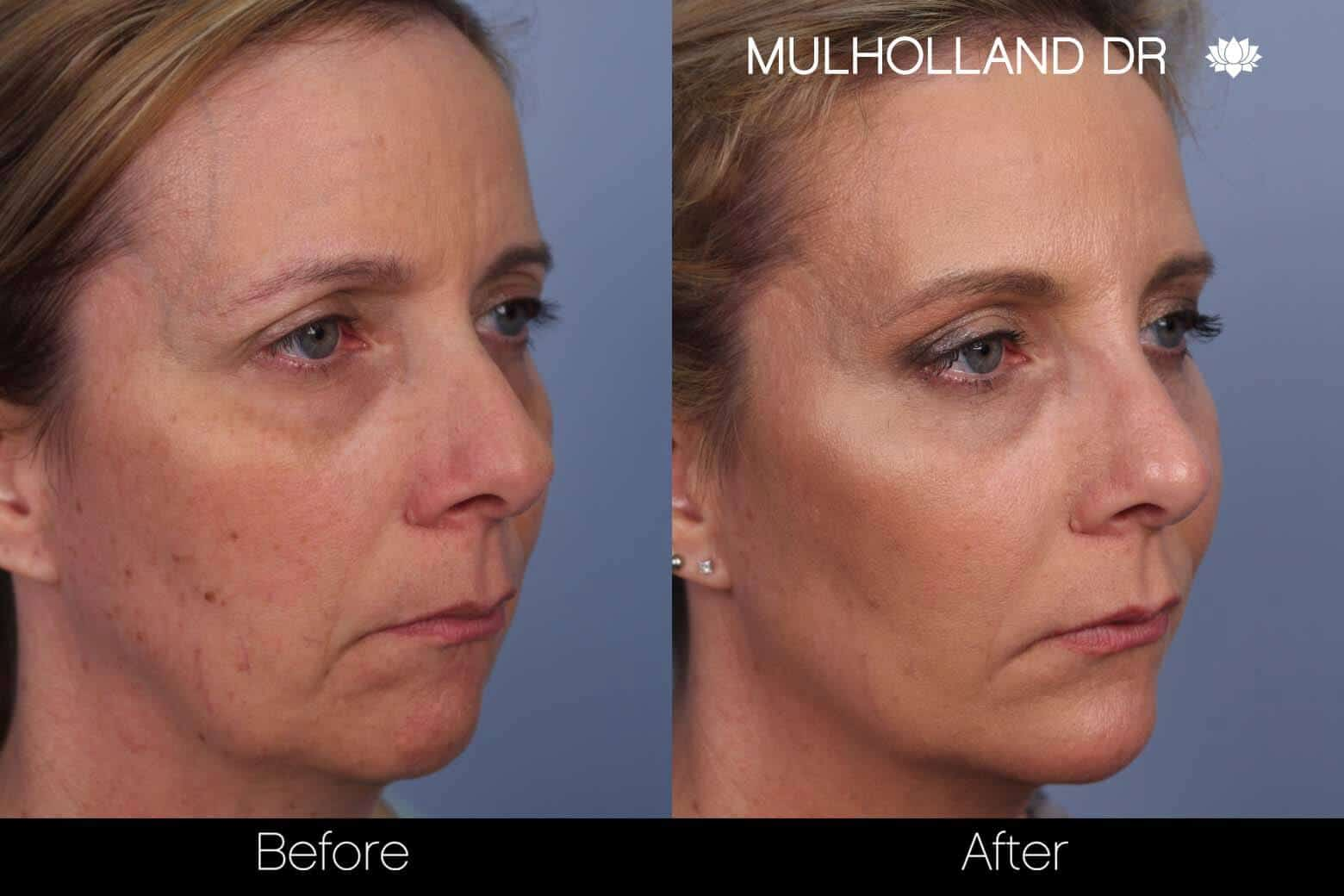 Fractional CO2 Laser Before and After Gallery – Photo 34