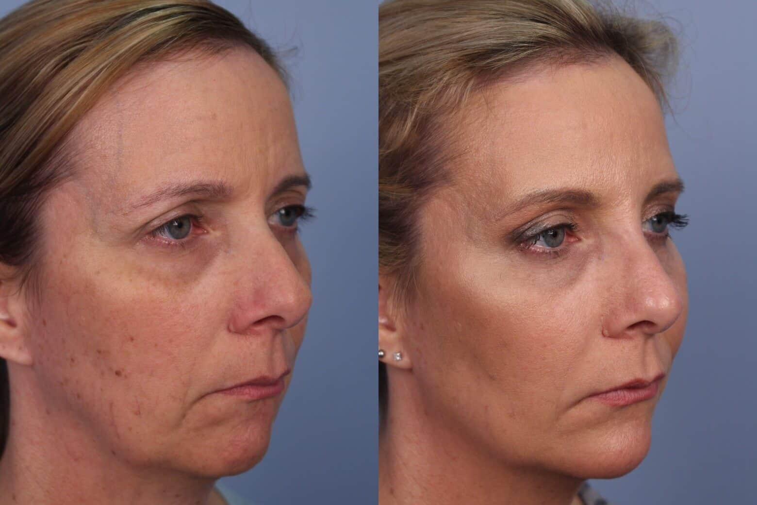 Fractional CO2 Laser Before and After Gallery – Photo 33