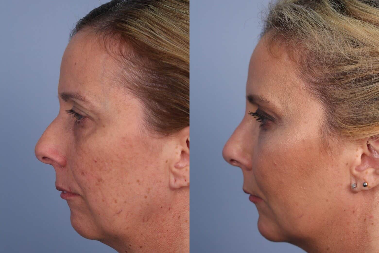 Fractional CO2 Laser Before and After Gallery – Photo 31