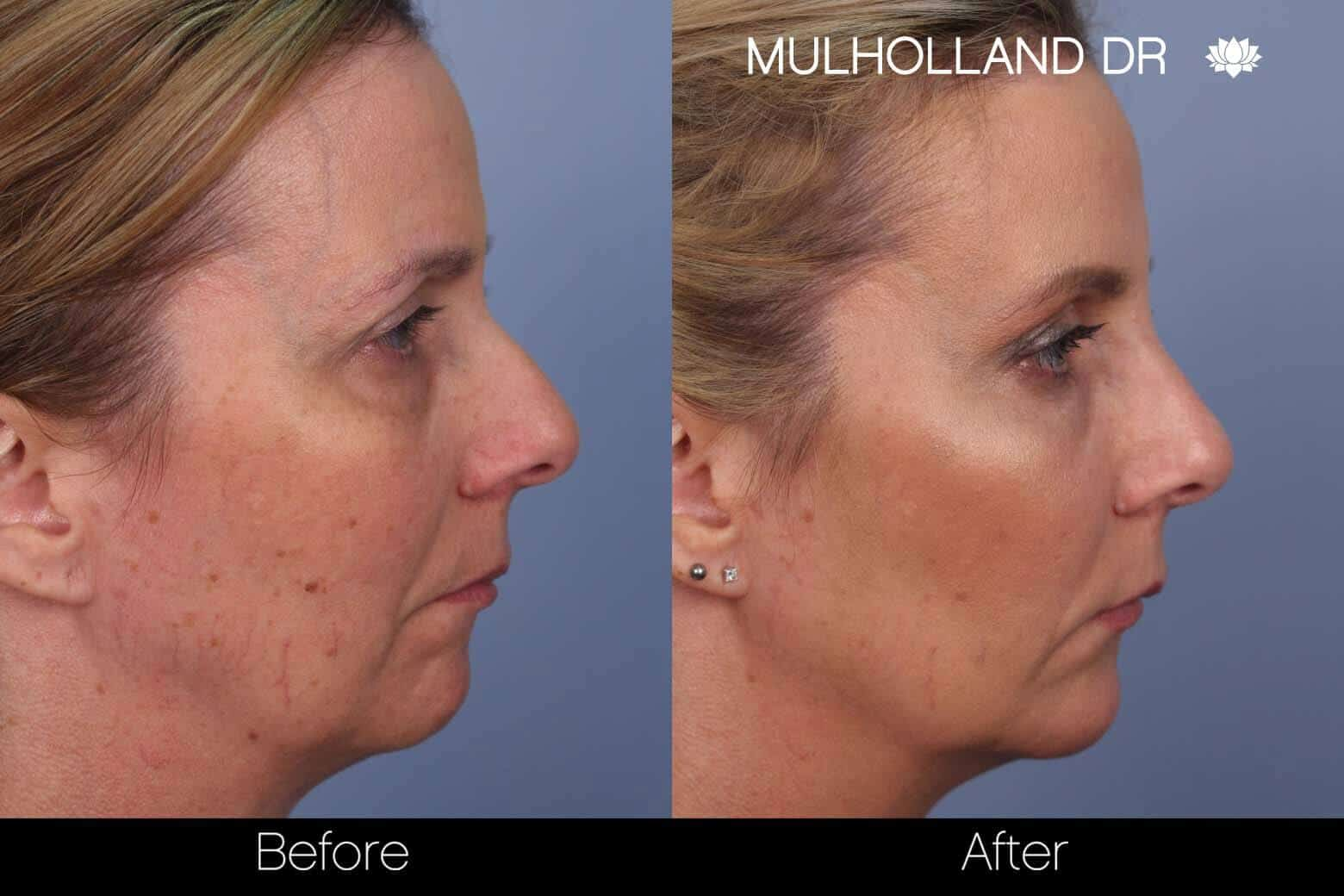 Fractional CO2 Laser Before and After Gallery – Photo 30
