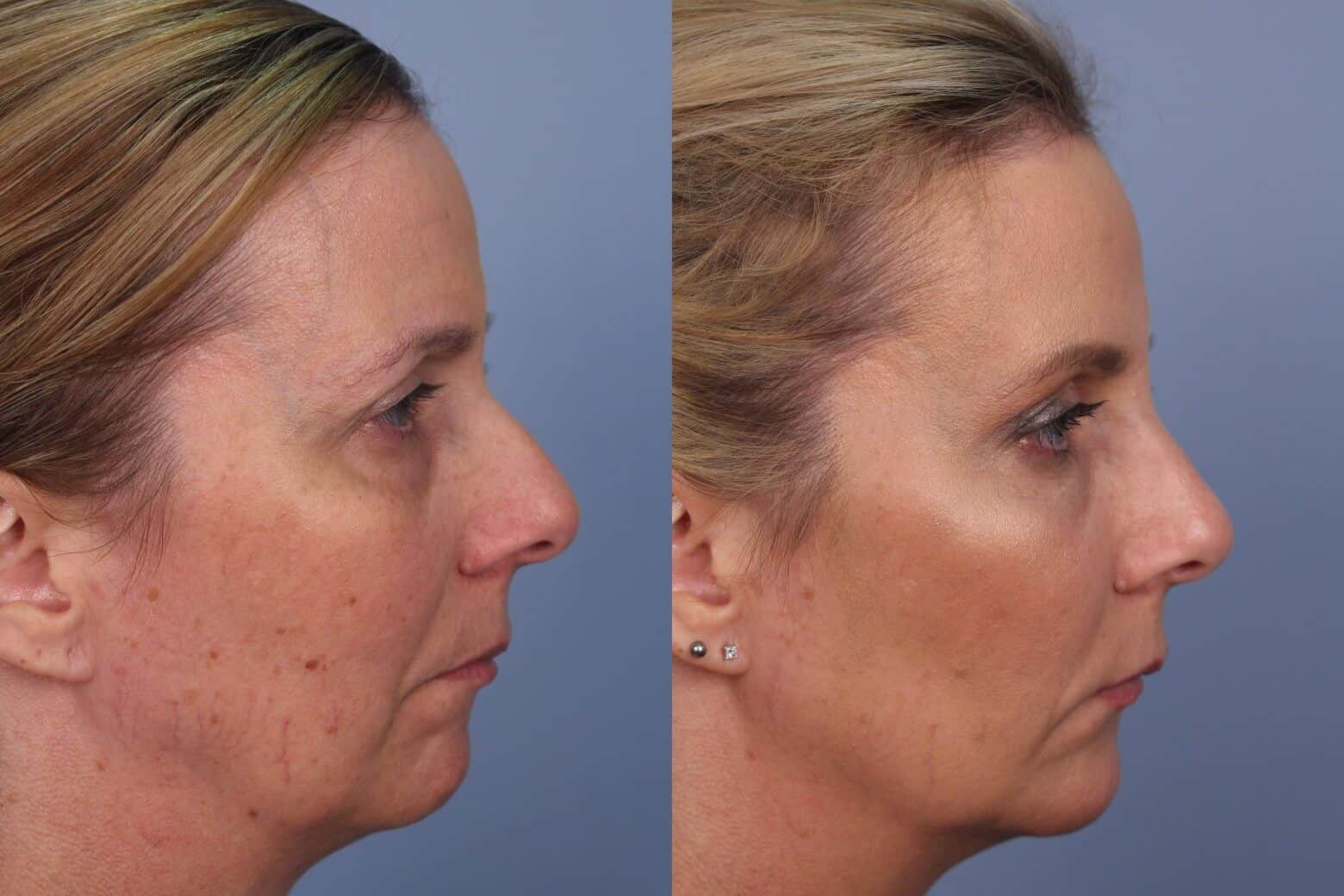 Fractional CO2 Laser Before and After Gallery – Photo 29